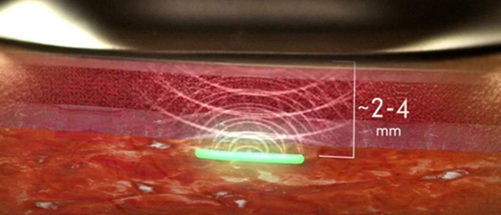 implantable-biosensor